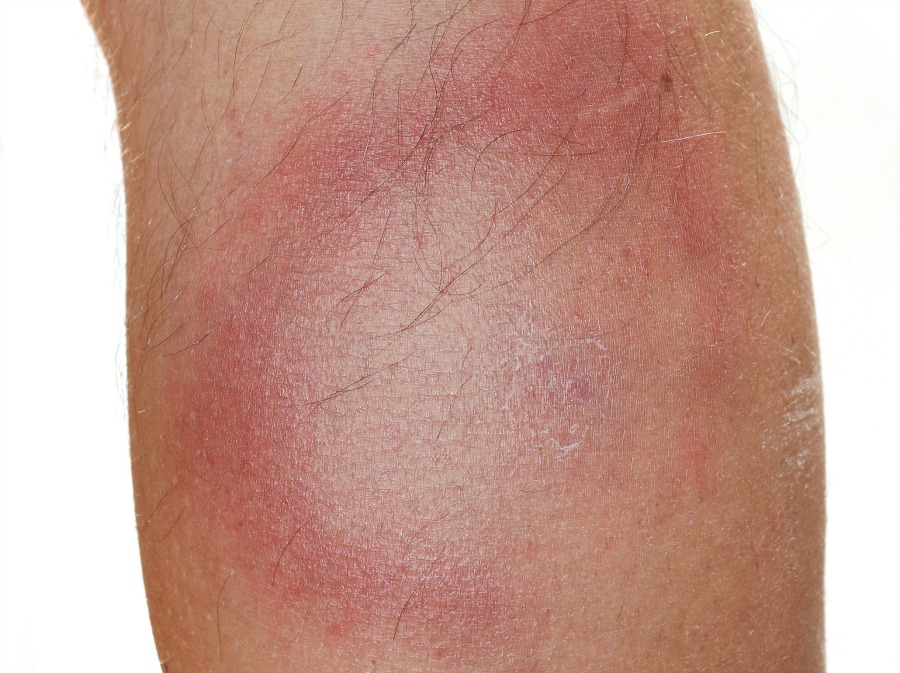 The tell-tale rash of Lyme disease.
